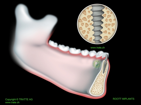 Roott system implants