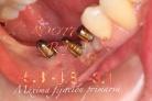 Clinica implantes Dr Rey Valladolid