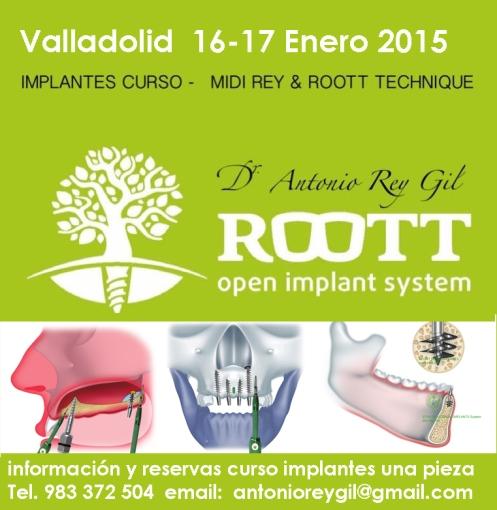 formación implantes .Implantes dentales Valladolid