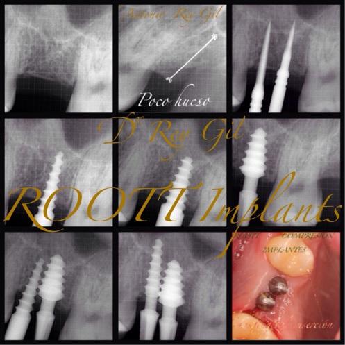 ROOTT implantes dentales Valladolid